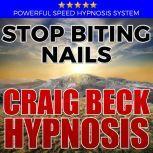 Stop Biting Nails: Hypnosis Downloads, Craig Beck
