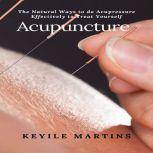 Acupuncture: The Natural Ways to do Acupressure Effectively to Treat Yourself, Keyile Martins