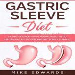 Gastric Sleeve Diet: A Concise Guide for Planning What to Do Before and After your Gastric Sleeve Surgery, Mike Edwards
