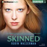 Skinned, Robin Wasserman